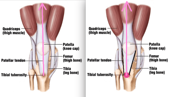 tibial tuberosity location comparison with line of pull arrow