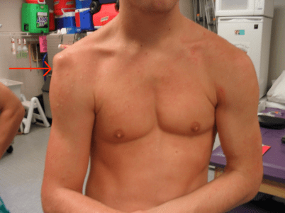 Sulcus sign shoulder instability