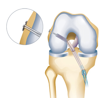 acl surgery endobutton femur
