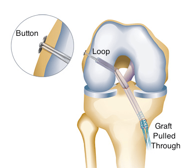 acl surgery endobutton with labeling