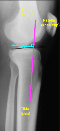 Tibial slope x ray with bones with tibial line with 90 degree line