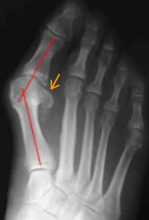 hallux-valgus-bones-2-with-sesamoid-line