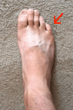right-foot-toe-in-with-pinky-line