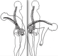 Flexion on right; extension left.
