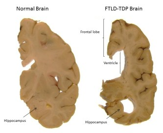 http://cdn.dementiablog.org/wp-content/uploads/2014/10/Normal-brain-vs-FTD-brain.jpg