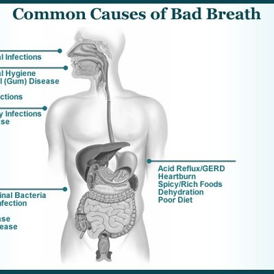Acid Reflux Bad For Teeth
