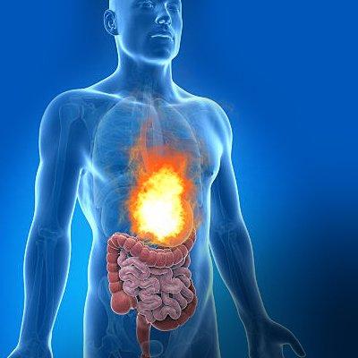 can acid reflux kill u
