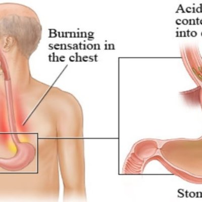 Heartburn And Acid Reflux Causes