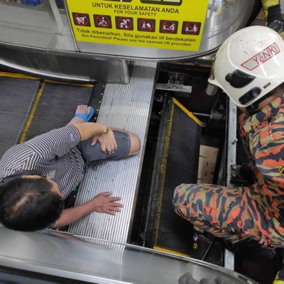 Man Breaks Leg Due To Accident At Escalator