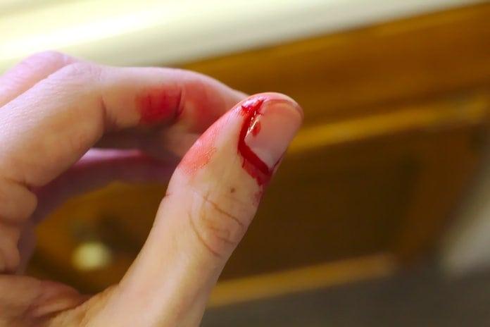 vérzés