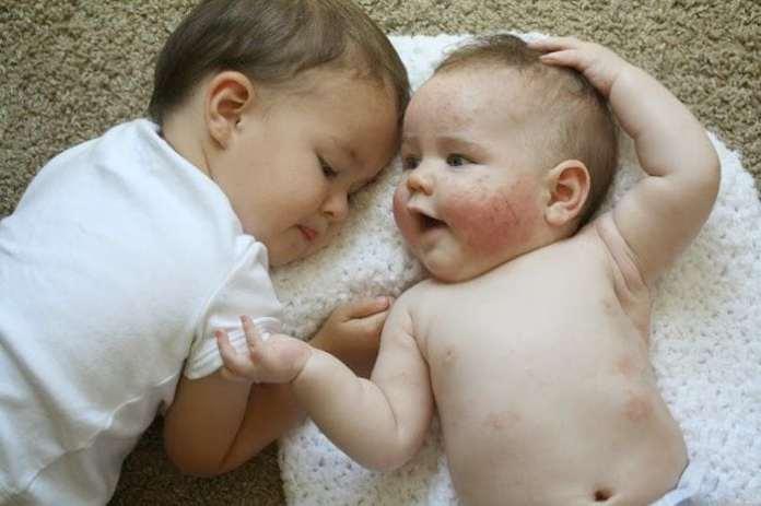 két baba fekszik egymás mellett