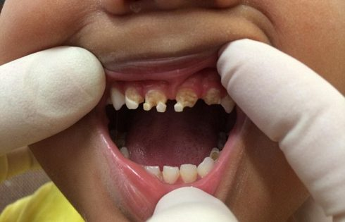 2d6cf9fb00000578-3271670-a_three_year_old_boy_underwent_a_major_dental_operation_to_have_-a-18_1445002229560