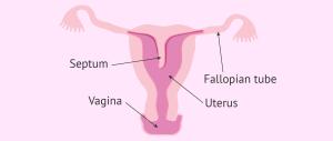 Diagram of a septate uterus