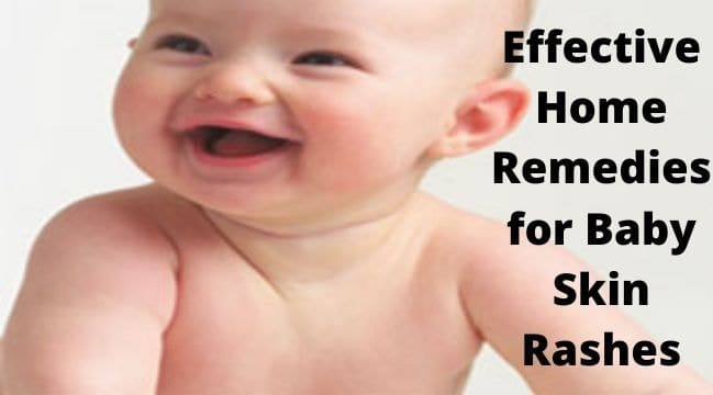 Home Remedies for Baby Skin Rashes