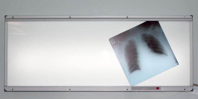 X-rays can be harmful during your pregnancy