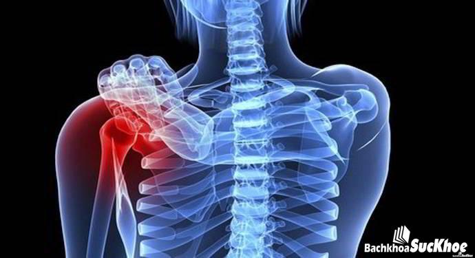 Làm gì để ngăn ngừa ung thư xương 1