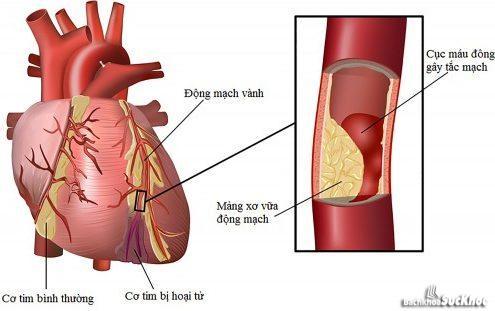 Bệnh viêm cơ tim – Nguyên nhân, các triệu chứng và một số thực phẩm hỗ trợ điều trị bệnh 1