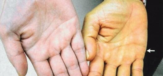 Vàng da là một trong những dấu hiệu của bệnh ung thư gan