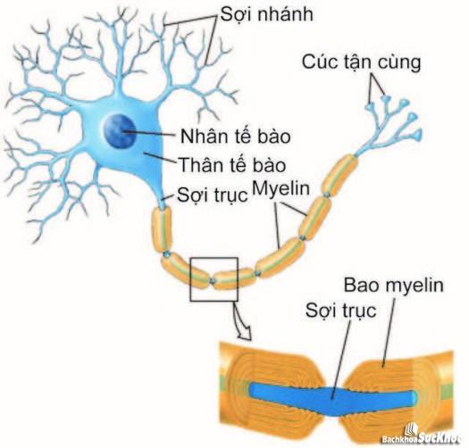 Nguyên nhân gây bệnh viêm đa dây thần kinh.