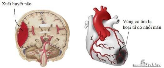 Hình ảnh của não khi bị xuất huyết.