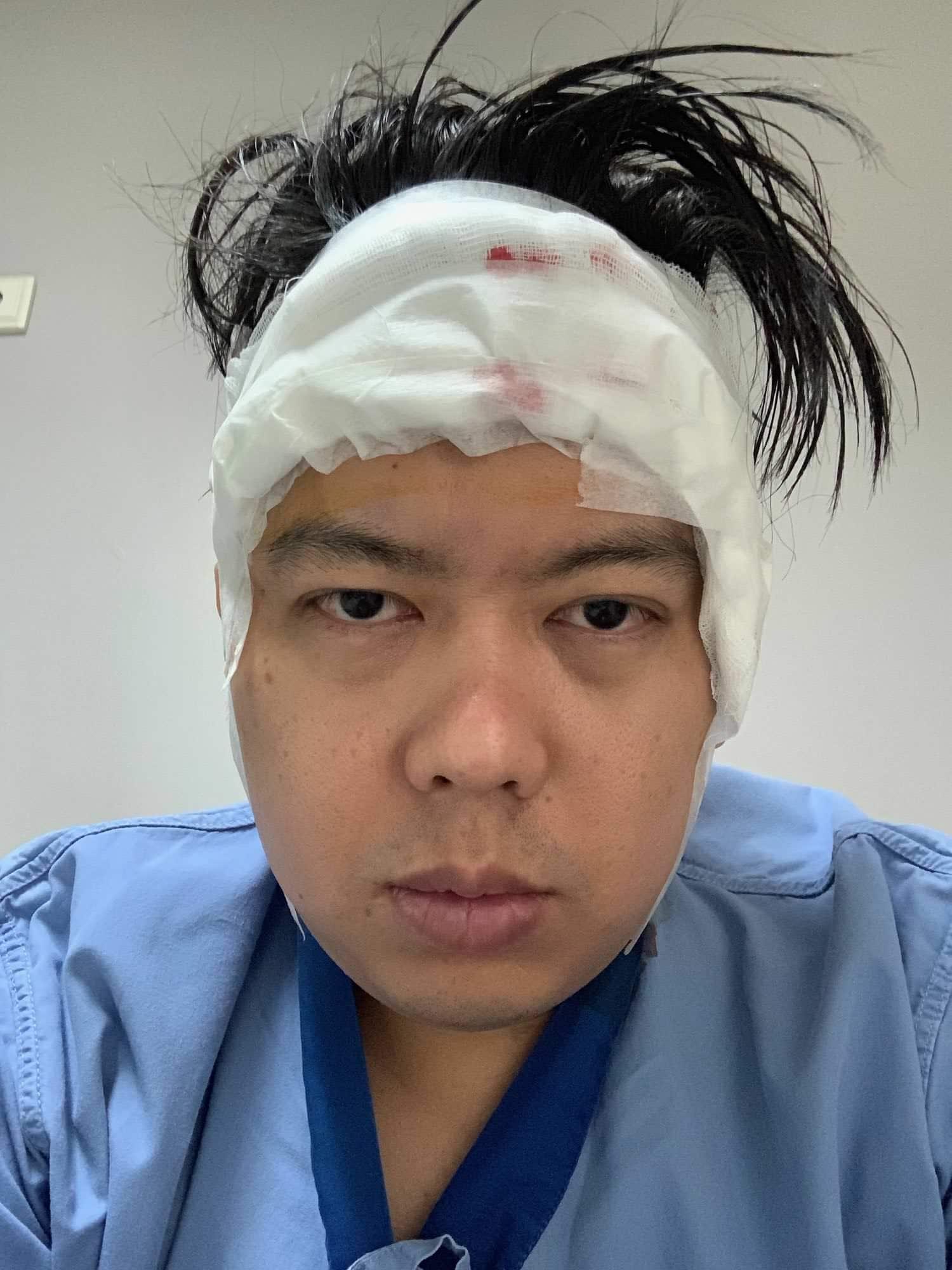 รีวิวการปลูกผม กับเรื่องราว ณ วันผ่าตัด 12