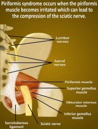 Anatomy of piriformis syndrome