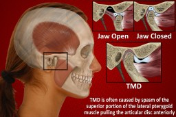 The muscles and movements of the TMJ