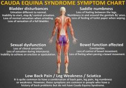 symptoms of cauda equina syndrome