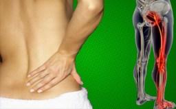 Sciatica, sciatic nerve pain