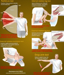 Tests for impingement syndrome