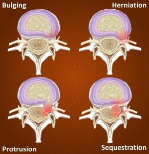Degrees of disc herniation