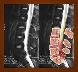 MRI of lumbar disc