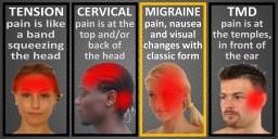 Common types of Headache