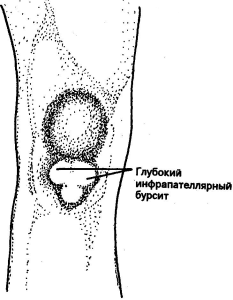 Bursitis of the knee: a species code in ICD 10, symptoms