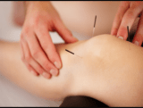 The Image Shows fine acupuncture needles inserted into a knee
