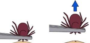 Tick removal with tweezers