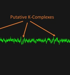 the second signal you can sort of easily spot at the k complexes which are amplitude swings some examples are below  [ 1280 x 720 Pixel ]