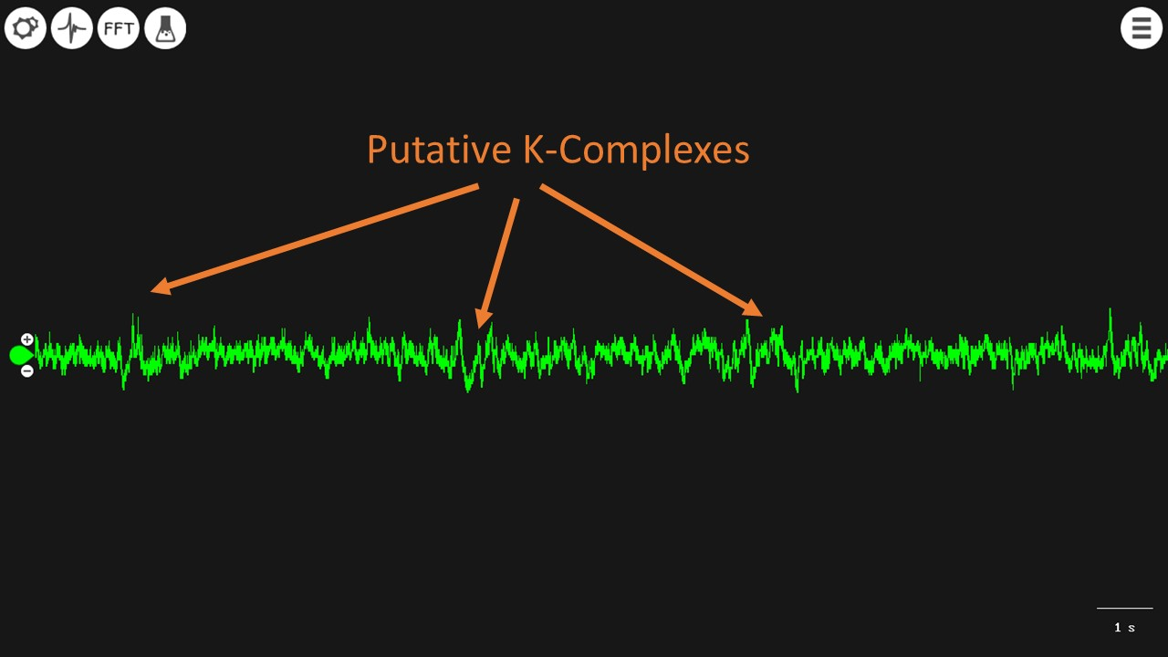 hight resolution of the second signal you can sort of easily spot at the k complexes which are amplitude swings some examples are below
