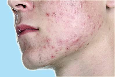 462120f14 Problemet med akne vulgaris. Årsakene til deres utseende og metoder ...