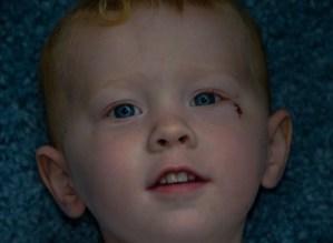 The eye injury