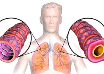 Fluid in Lungs | | pulmonary edema or fluid in lungs treatment symptoms and signs causes.