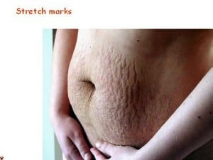 Best Natural Way To Get Rid Of Stretch Marks