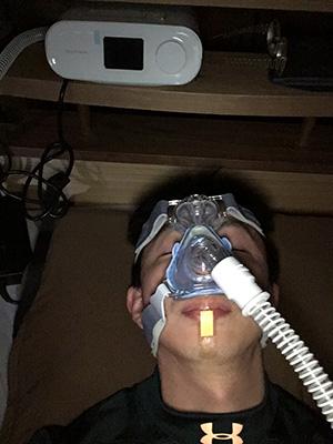 機械で呼吸補助