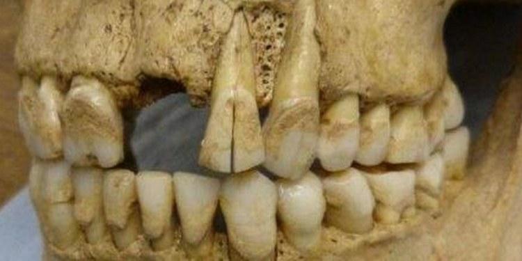 Dentadura antigua revela cómo comían los británicos en la antigüedad 1