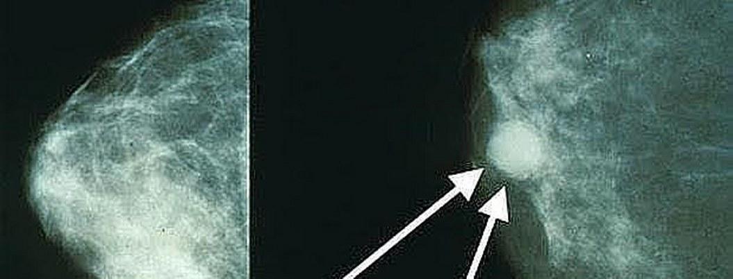 Examen para detectar cáncer de mama resulta efectivo en hombres