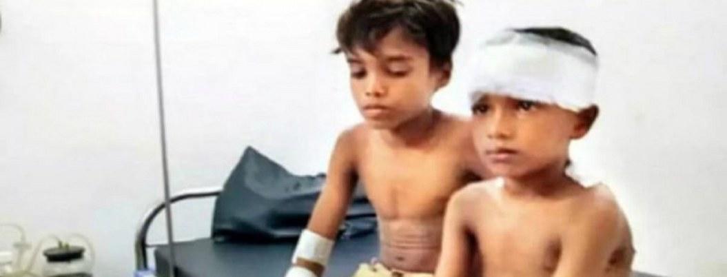 Niño de 7 años defiende a su primo de ataque de leopardo