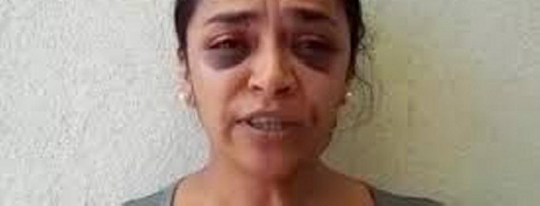 Reportera denuncia intento de violaión y recibe golpiza de policías