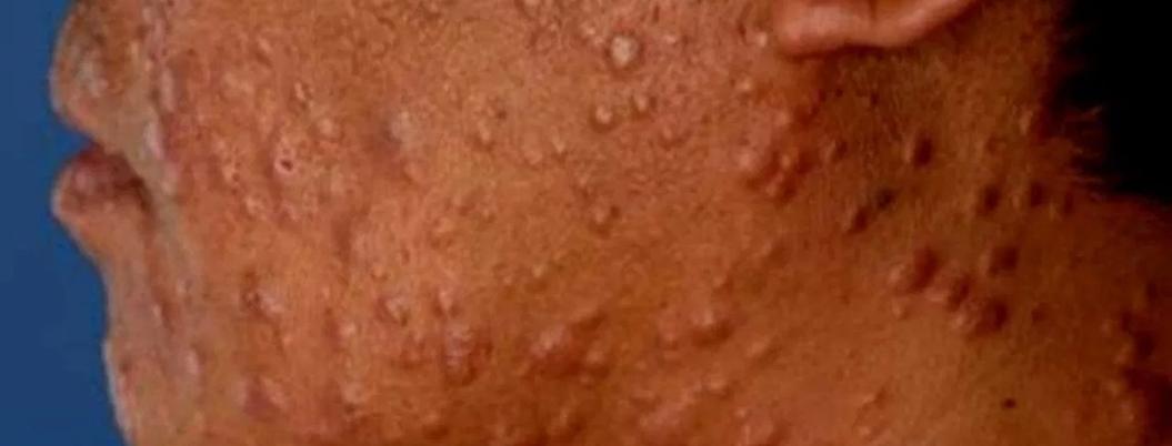 Lepra ya no es problema de salud en México