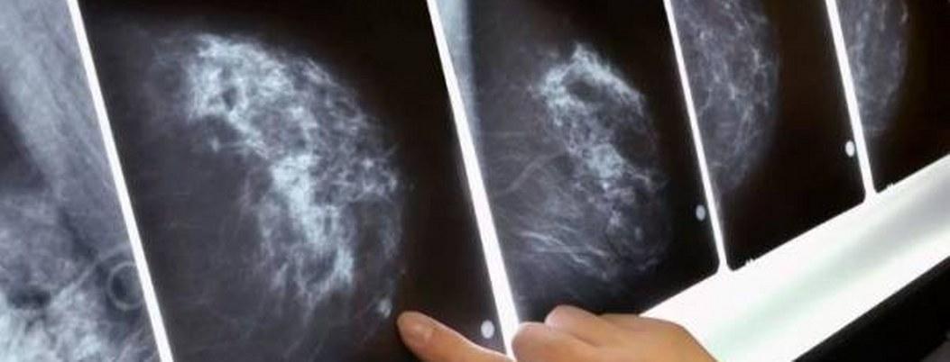 Inteligencia artificial podrá detectar cáncer antes que médicos