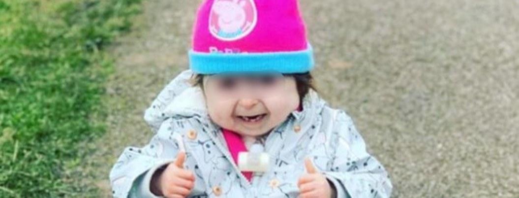 """Niña nació con la misma condición de """"Benjamin Button"""""""